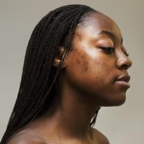 积极的接受痤疮运动如何才能够继续向前发展?-护肤&美体